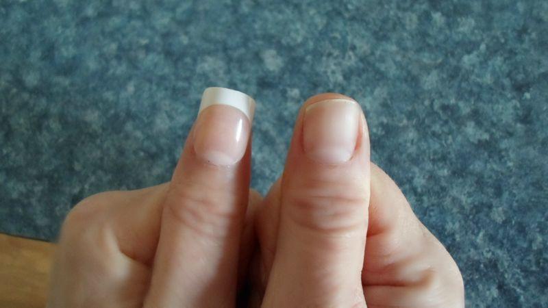 Missing nail bp